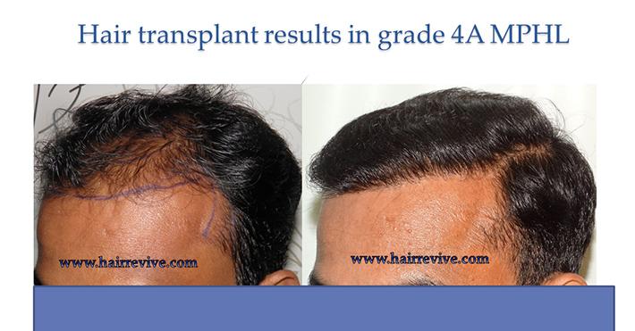 Hair Transplant Grade 4