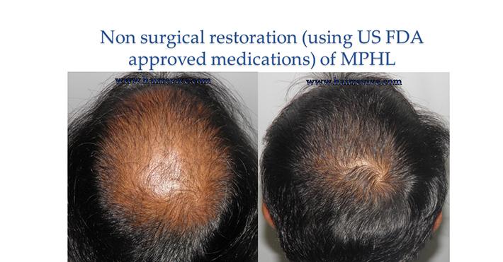 Non surgical restoration