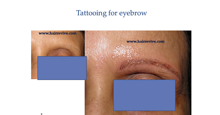 Tattooing for eyebrow
