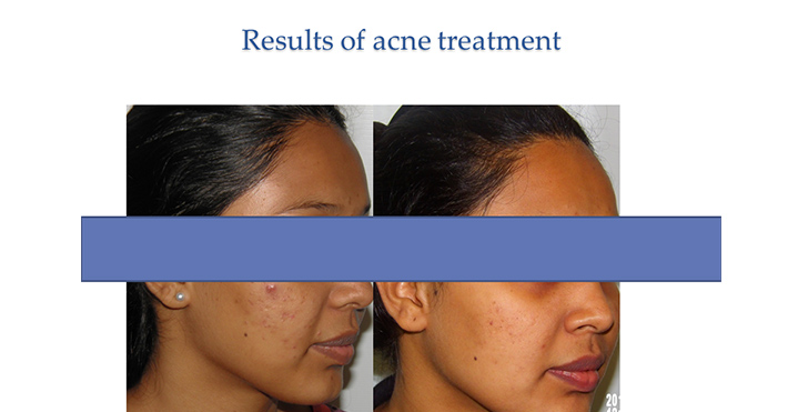 Results of acne treatment