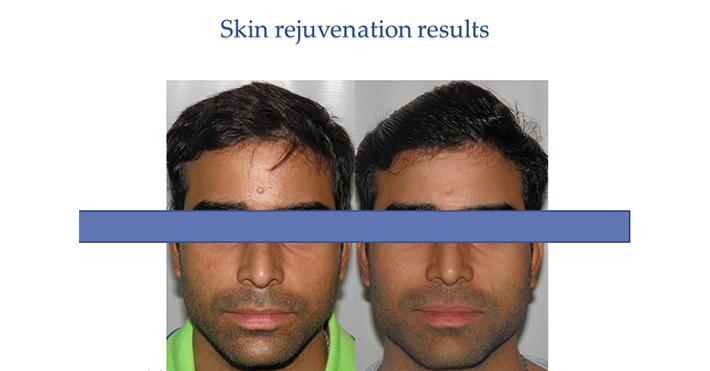 Skin Rejuvention