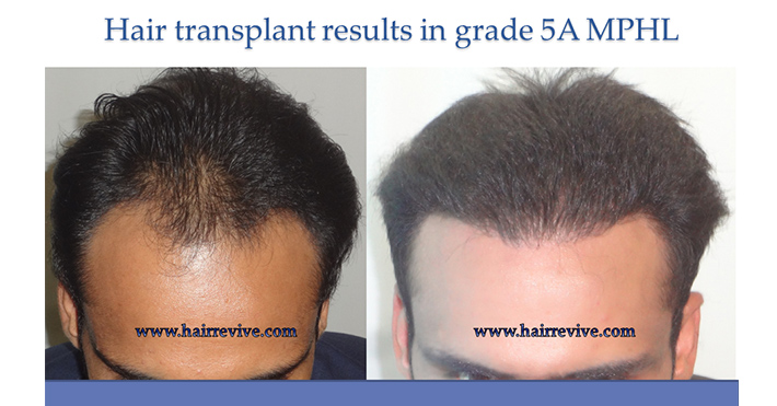 Hair Transplant Grade 5A
