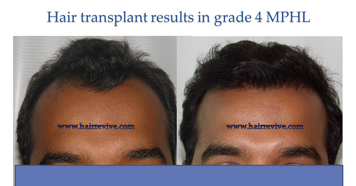 Hair Transplant Results in grade 4A