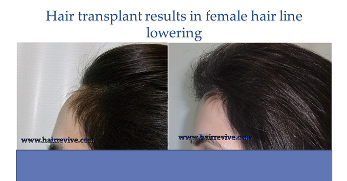 Hair Transplant Results in female