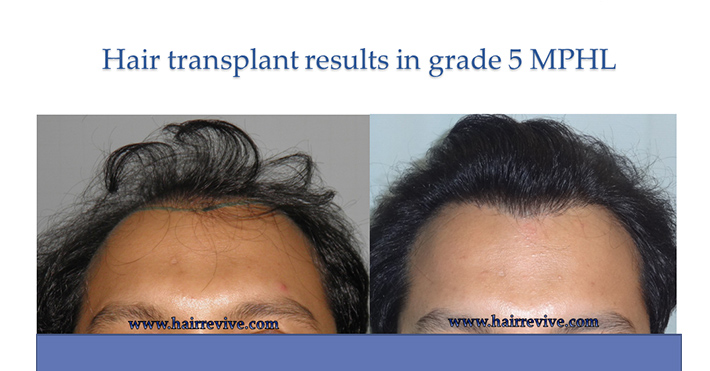 Hair Transplant Results in grade 5