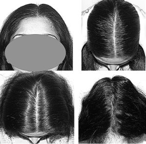 Women-scalp-photo-for-teleconsulation